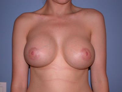 Breast Augmentation Gallery - Patient 4757330 - Image 2