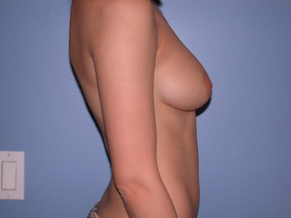 Breast Augmentation Gallery - Patient 4757330 - Image 3