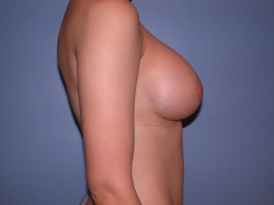 Breast Augmentation Gallery - Patient 4757330 - Image 4