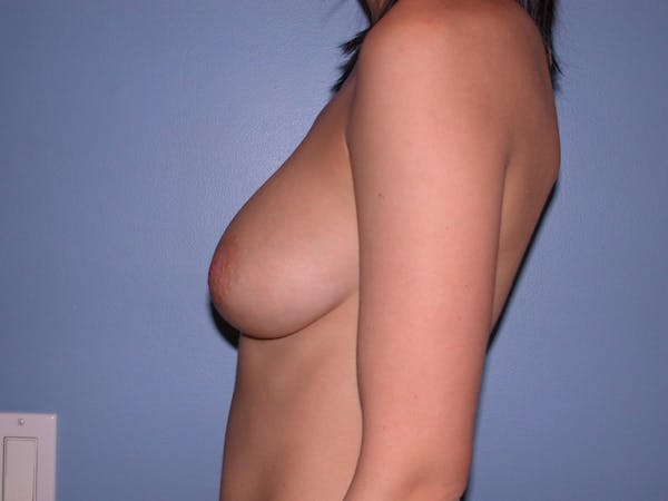 Breast Augmentation Gallery - Patient 4757330 - Image 5