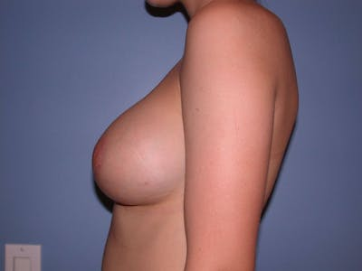 Breast Augmentation Gallery - Patient 4757330 - Image 6