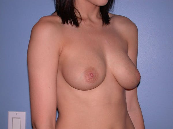 Breast Augmentation Gallery - Patient 4757330 - Image 7
