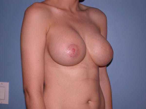 Breast Augmentation Gallery - Patient 4757330 - Image 8