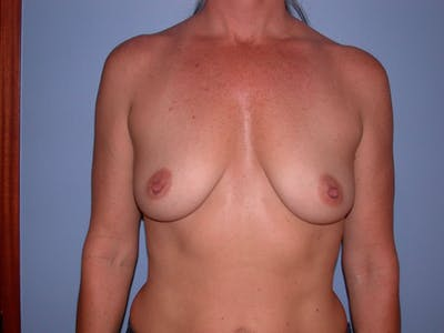 Breast Augmentation Gallery - Patient 4757331 - Image 1