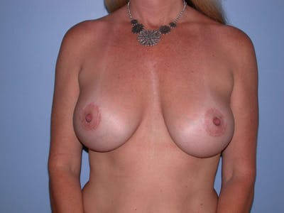 Breast Augmentation Gallery - Patient 4757331 - Image 2