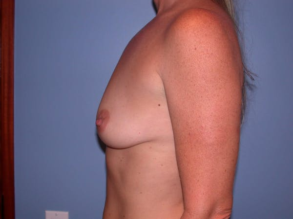 Breast Augmentation Gallery - Patient 4757331 - Image 3