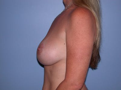 Breast Augmentation Gallery - Patient 4757331 - Image 4