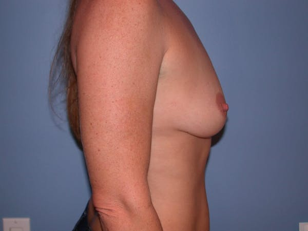 Breast Augmentation Gallery - Patient 4757331 - Image 5