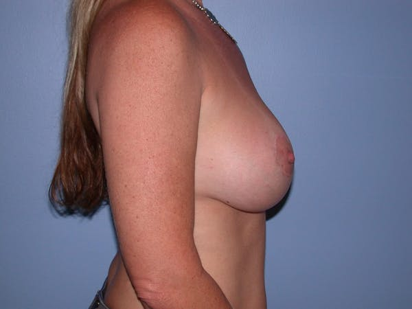 Breast Augmentation Gallery - Patient 4757331 - Image 6
