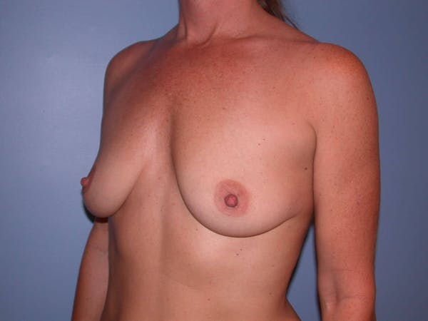 Breast Augmentation Gallery - Patient 4757331 - Image 7