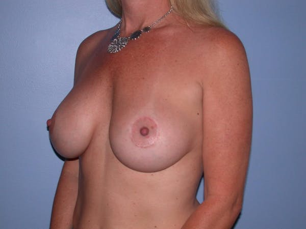 Breast Augmentation Gallery - Patient 4757331 - Image 8