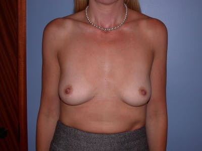 Breast Augmentation Gallery - Patient 4757335 - Image 1