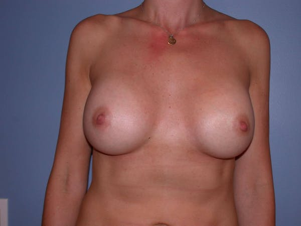 Breast Augmentation Gallery - Patient 4757335 - Image 2