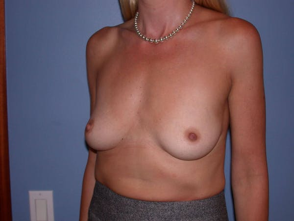 Breast Augmentation Gallery - Patient 4757335 - Image 3