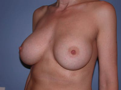 Breast Augmentation Gallery - Patient 4757335 - Image 4