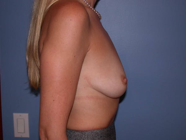 Breast Augmentation Gallery - Patient 4757335 - Image 5