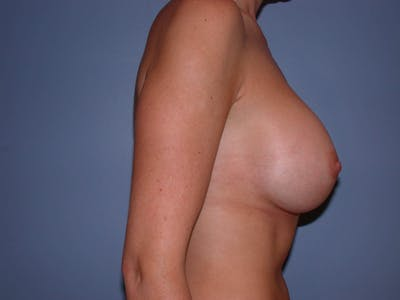 Breast Augmentation Gallery - Patient 4757335 - Image 6