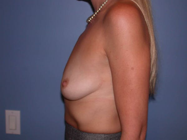 Breast Augmentation Gallery - Patient 4757335 - Image 7