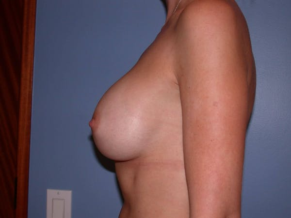 Breast Augmentation Gallery - Patient 4757335 - Image 8