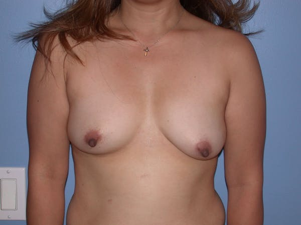 Breast Augmentation Gallery - Patient 4757339 - Image 1