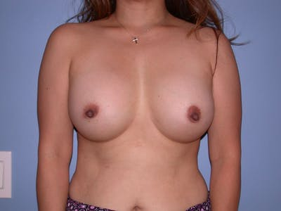 Breast Augmentation Gallery - Patient 4757339 - Image 2
