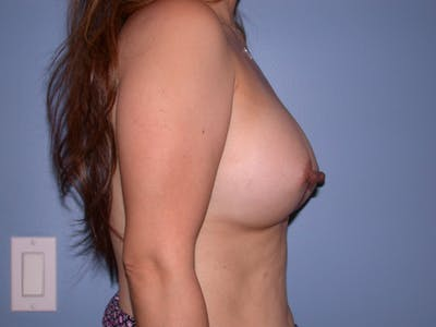 Breast Augmentation Gallery - Patient 4757339 - Image 4
