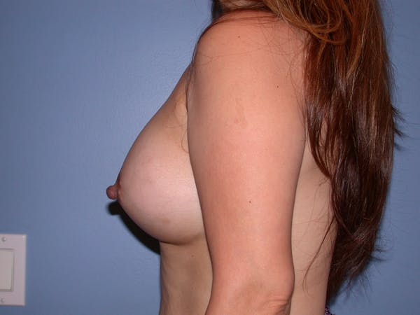 Breast Augmentation Gallery - Patient 4757339 - Image 6