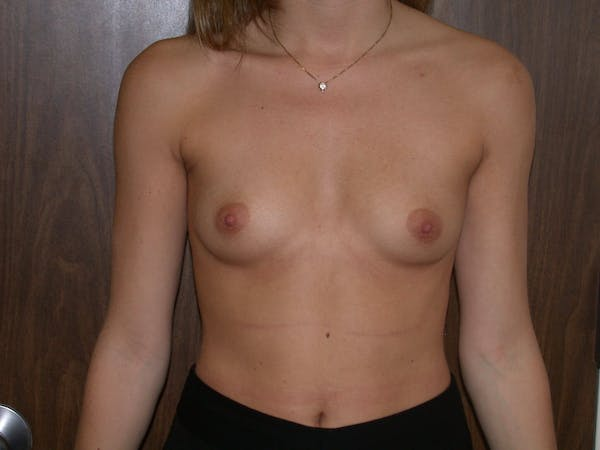 Breast Augmentation Gallery - Patient 4757347 - Image 1