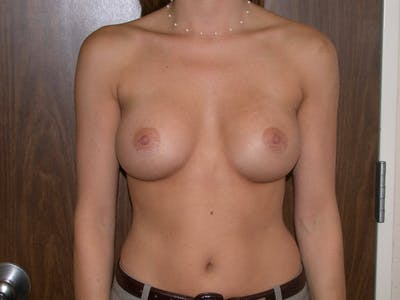 Breast Augmentation Gallery - Patient 4757347 - Image 2