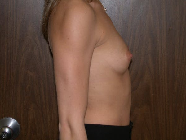 Breast Augmentation Gallery - Patient 4757347 - Image 3