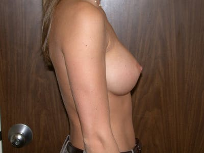 Breast Augmentation Gallery - Patient 4757347 - Image 4