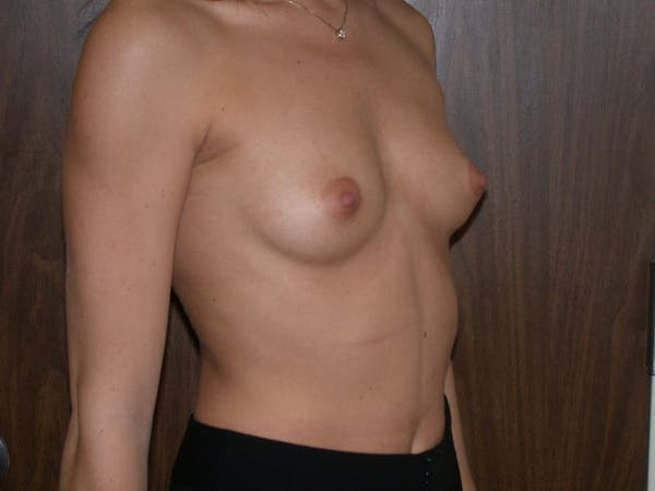Breast Augmentation Gallery - Patient 4757347 - Image 7