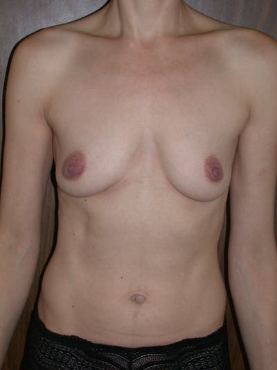 Breast Augmentation Gallery - Patient 4757351 - Image 1