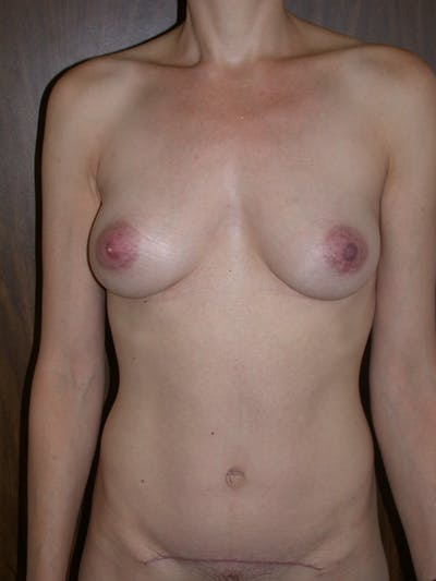 Breast Augmentation Gallery - Patient 4757351 - Image 2