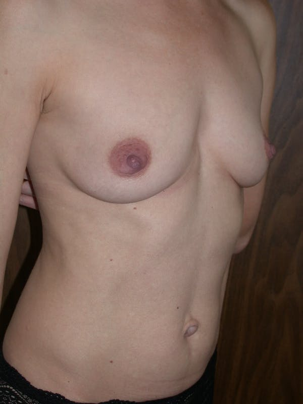 Breast Augmentation Gallery - Patient 4757351 - Image 3