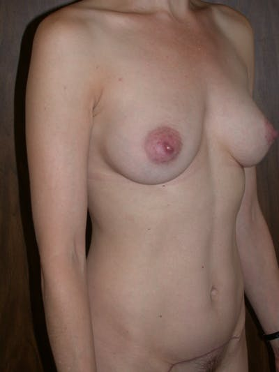 Breast Augmentation Gallery - Patient 4757351 - Image 4