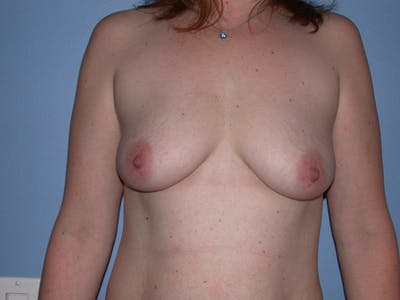 Breast Augmentation Gallery - Patient 4757358 - Image 1
