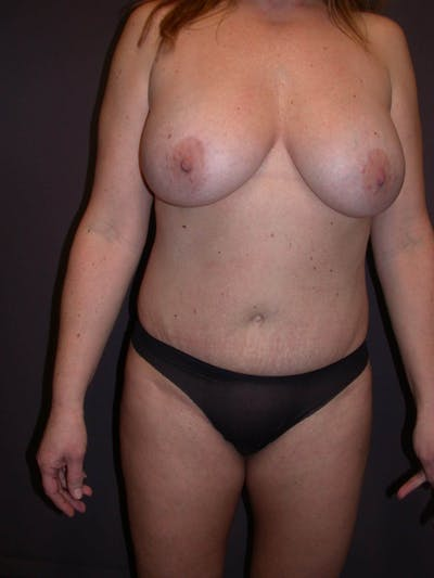 Breast Augmentation Gallery - Patient 4757358 - Image 2