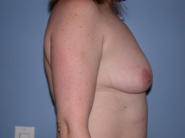 Breast Augmentation Gallery - Patient 4757358 - Image 3