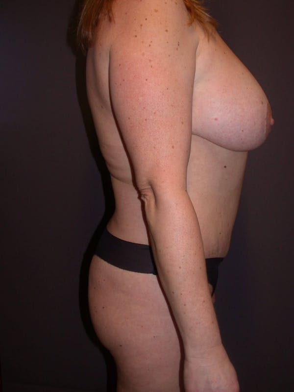 Breast Augmentation Gallery - Patient 4757358 - Image 4