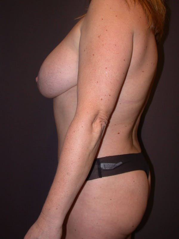Breast Augmentation Gallery - Patient 4757358 - Image 6