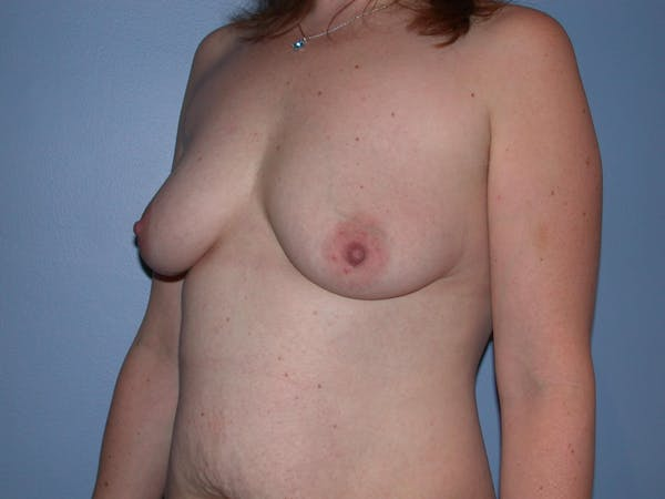 Breast Augmentation Gallery - Patient 4757358 - Image 7