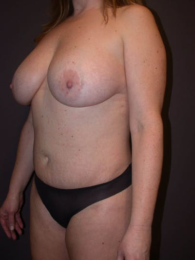 Breast Augmentation Gallery - Patient 4757358 - Image 8