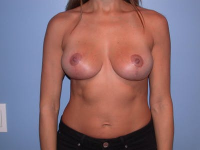 Breast Augmentation Gallery - Patient 4757379 - Image 2