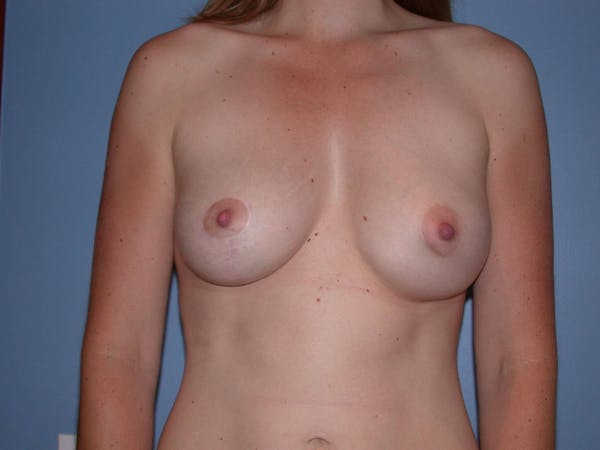 Breast Augmentation Gallery - Patient 4757383 - Image 2