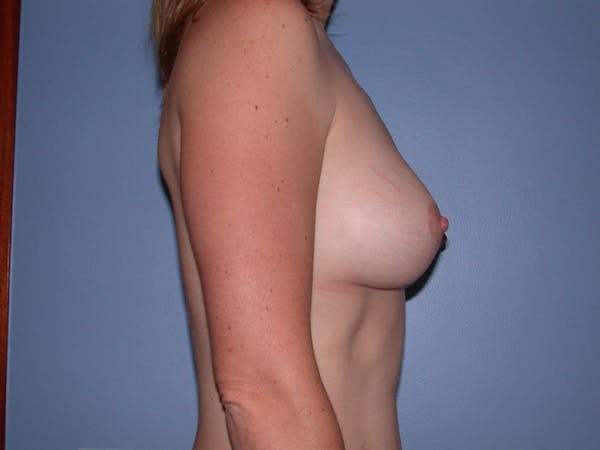 Breast Augmentation Gallery - Patient 4757383 - Image 6