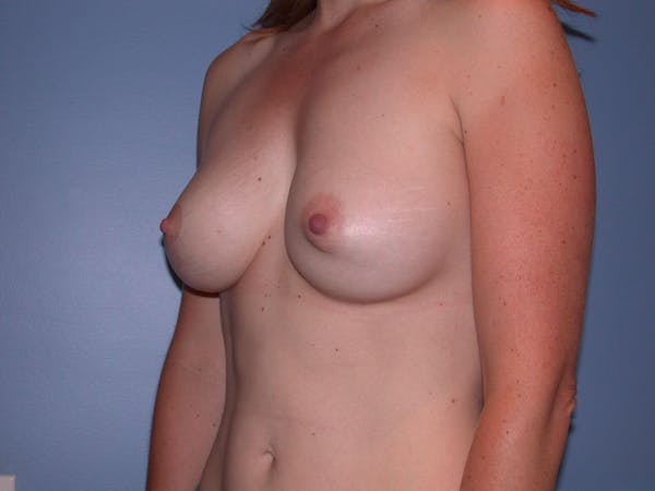 Breast Augmentation Gallery - Patient 4757383 - Image 8