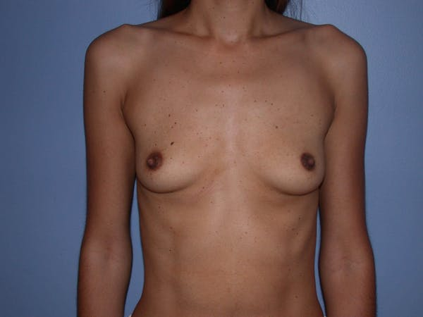 Breast Augmentation Gallery - Patient 4757387 - Image 1