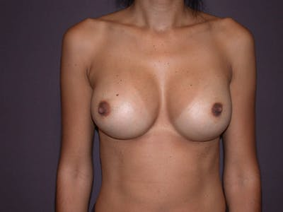 Breast Augmentation Gallery - Patient 4757387 - Image 2
