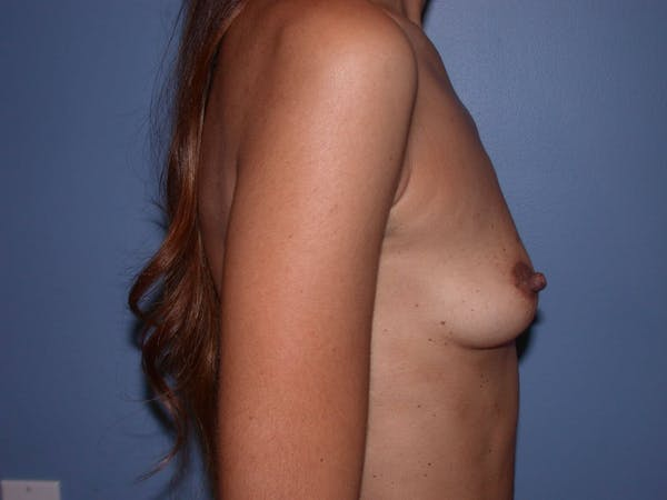 Breast Augmentation Gallery - Patient 4757387 - Image 3